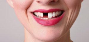 tu diente perdido vuelva a crecer